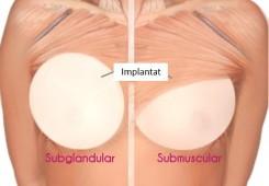 Placering av bröstimplatat