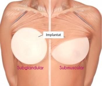 bröstförstoring framför muskeln