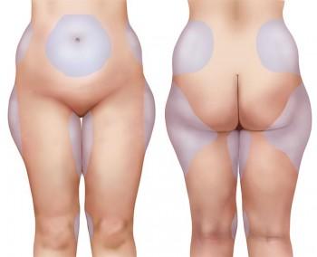 Din guide till fettsugning