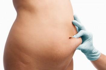 Metoder för fettsugning